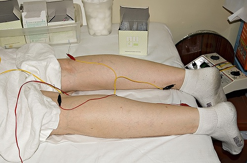 acupuncture-treatment-legs-pain-alternative