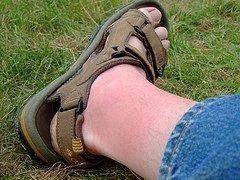 sunburn-travel-foot-remedy-vacation